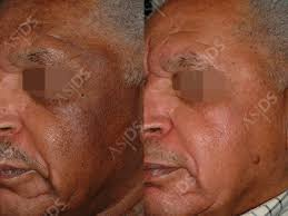 before left and after right male melasma patient after treatment with hydroquinone tca chemical l and salicylic acid chemical l