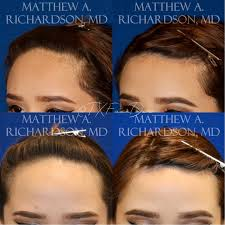 hairline lowering frisco tx forehead