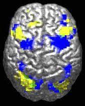 Атипичный аутизм Википедия Общая информация о аутизме править править код