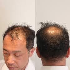 頭頂部 髪型薄毛軟毛もカバーするカットとセットのポイント Inti