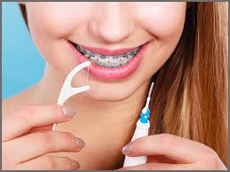 care guide for your teeth with braces