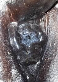 Cancer In Horses Holistichorse Com