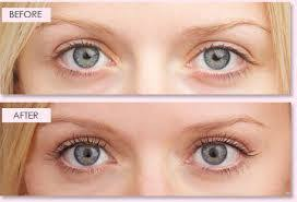 best eyelash curler before and after. lash lift for the eyelashes is a wonderful alternative to getting eyelash extensions. this treatment gives same effect as using an curler, best curler before and after