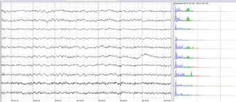 Electroencephalography Wikipedia