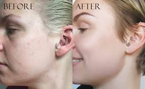 bination acne e skin before and after photos using korean skin care k beauty