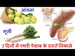 Kidney Stone Diet Chart In Hindi Pdf