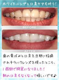 黄ばんだ歯も真っ白!100円のおうちホワイトニング | コットントレンド