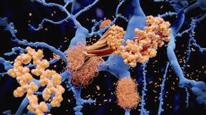Alzheimer-Wirkstoff Aducanumab – Was ist wirklich dran? - FOCUS Online