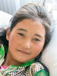 Dr Myra Elliott returns to Ladakh in 2016 for successful surgical treatment  of 20 cleft palate patients - Himalayan Health Project
