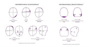 Classifying Plagiocephaly How Is Severity Defined