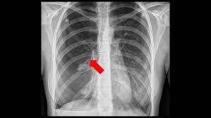 Spontaneous Pneumothorax Childrens Hospital Of Philadelphia