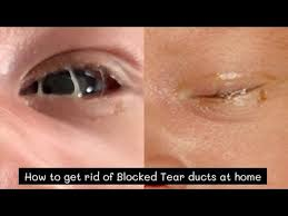 how to get rid of blocked tear duct at
