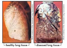 smoking over the long term smoking leads people to develop health problems like heart disease stroke emphysema breakdown of lung tissue and many types of