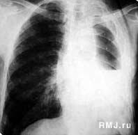 Аспирационная пневмония Авдеев С Н РМЖ № от  Аспирационная пневмония нижней доли левого легкого и левосторонний пио пневмоторакс у женщины 67 лет перенесшей инсульт и страдающей дисфагией