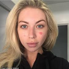 taking over my life sti schroeder opened up to fans about her psoriasis on