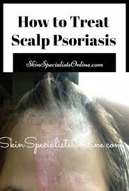 how to treat scalp psoriasis dermatologist tips for hair diseases