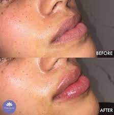 lip fillers without fear or hle