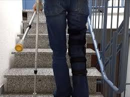 Geh in die hocke und greife mit deinen händen unter deine füße. Treppensteigen Mit Krucken Wie Am Besten Treppe Hoch Und Runter