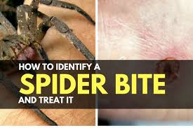 Spider Bite Identification Chart Pictures How To Identify A Spider Bite And Treat It Trueprepper