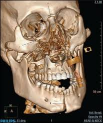 Le Fort Fracture Airway Management In A Patient With Le Fort Iii Fracture Ghabach Mb