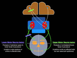 palsy upper and lower motor neuron lesions dr mdm