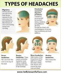 Headache Chart Top Of Head Handy Charts To Help Deal With Migraines Health