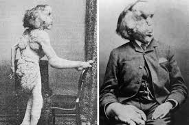 the elephant man. Wonderful The Elephant Man To The