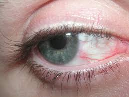 Red, Itchy, Burning Eyes? You Might Have Dry Eye Syndrome ...