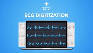 Ecg Digitization System Powerful Medical