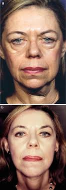 lateral canthal surgery in