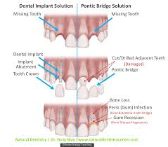 Top Dental Implant Dentist for Reconstruction | Dr. Yuriy May