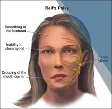 Is there a cure for bell's palsy