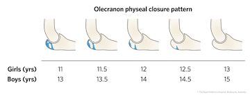 Growth Plate Closure Chart Fracture Education Remodelling