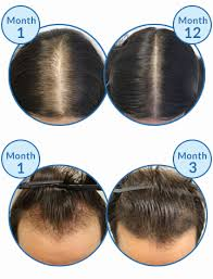 Male Pattern Baldness Cure New Could Targeting CXXC48 Protein Cure Baldness And Regrow Hair