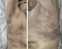 Rashes may cause the skin to change color, itch, become warm, bumpy, chapped, dry, cracked or blistered, swell, and may be painful. Reply To Covid 19 Can Present With A Rash And Be Mistaken For Dengue Petechial Rash In A Patient With Covid 19 Infection Journal Of The American Academy Of Dermatology