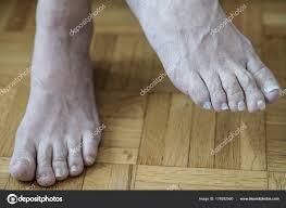 Detailní Záběr Nohy Artritidou Poškozené Nehty Protože Plísně Mykózy