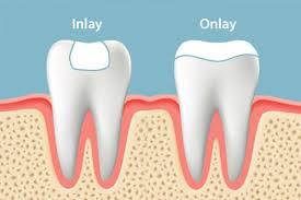 Dental Inlay Dental Inlays Onlays Dentistry In Nj All Brite Dentistry