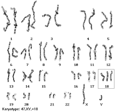 Karyotype Chart Human Chromosomal Disorders