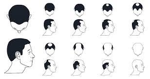 International Standards For Treatment Planning For Hair Loss
