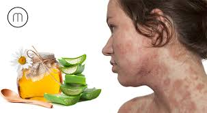 Home Remedies to Cure Skin Allergy