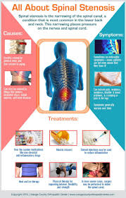 over the counter pain relief for sciatica