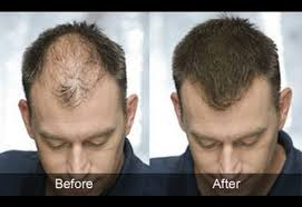 Male Pattern Baldness Cure Delectable Male Pattern Baldness Cure What Is The Best Remedy Against Hair