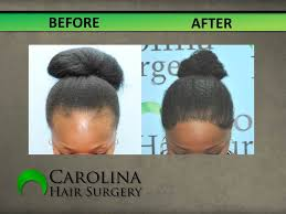 Male Pattern Baldness In Women Impressive Hair Loss Restoration In Women Carolina Hair Surgery