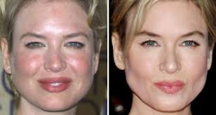 renée zellweger afflicted like so many of us with rosacea
