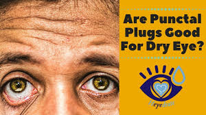 are punctal plugs good for dry eye