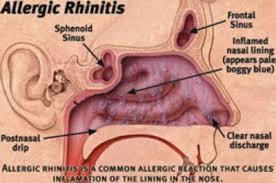 Image result for αλλεργικο εξανθημα διαρκεια