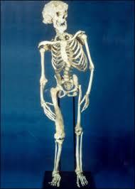 joseph merrick. Simple Joseph The Skeleton Of Joseph Merrick And