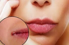 heal ed lip corners fast