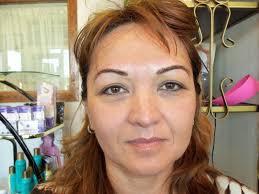 hairline brows after proceedure eyeliner was pleted five years earlier