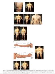 Hijama Cupping Points Chart Anatomical Sites For Practicing Wet Cupping Therapy Al
